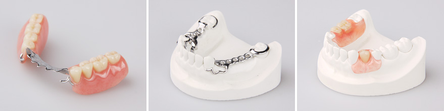 Acrylic, Nylon and Cast Metal Partial Dentures