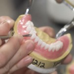 West End Dentures - How It Works
