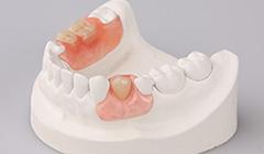 Flexible Dentures in West End